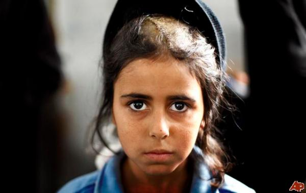 Young Gazan girl wounded during the massacre of Dec 08/Jan 09. More than half of Gaza's 1.5 million people are children.